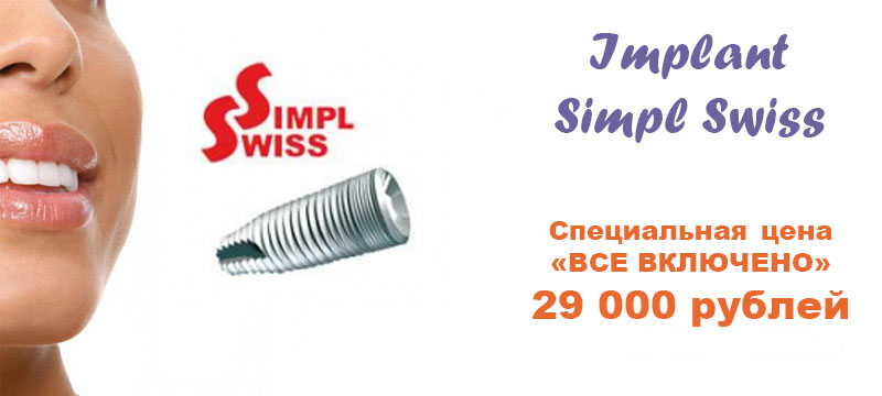 SimplSwiss